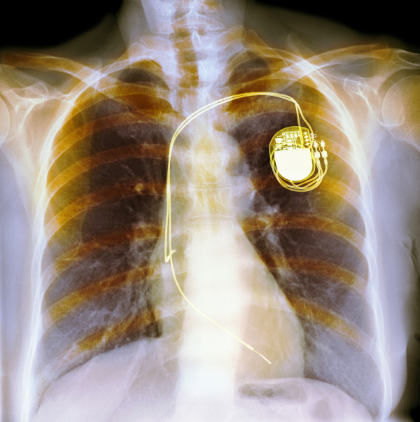 Dual chamber pacemaker. Coloured X-ray of the chest of a patient with a dual chamber pacemaker (top right). Wires lead from the device to both the right atrium and right ventricle of the heart. They supply electrical impulses that keep the heart beating regularly.
